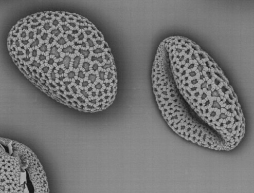 Photograph of pollen taken under an electron microscope.